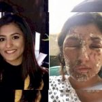 acid attacks women